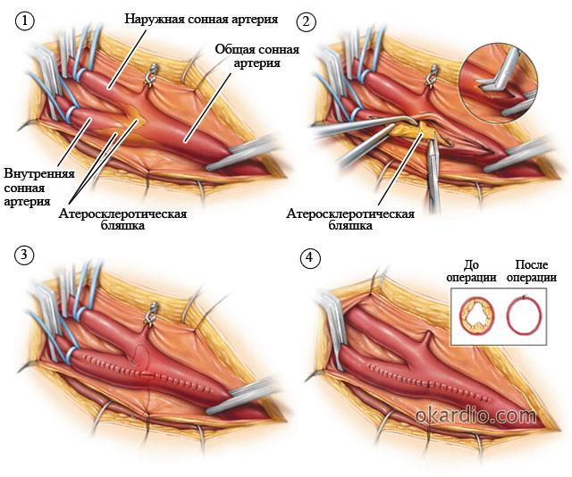 хирургическое удаление бляшки из сонной артерии