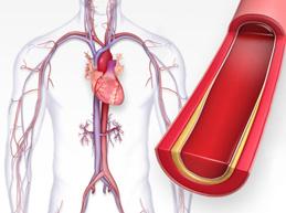 Атеросклероз аорты сердца: что это такое, симптомы, как лечить
