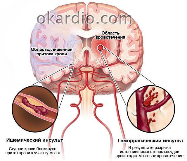 При геморрагическом инсульте сознание