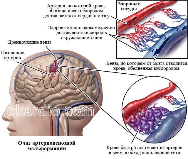 артериовенозная мальформация в головном мозге