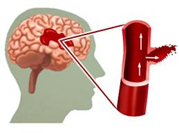 Полная характеристика геморрагического инсульта: симптомы и лечение