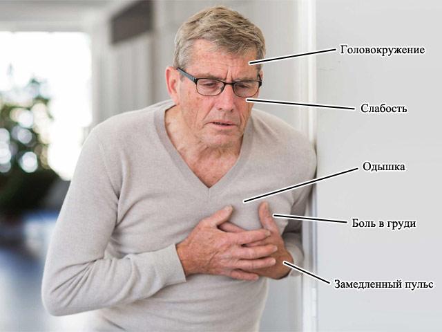 основные симптомы синусовой брадикардии