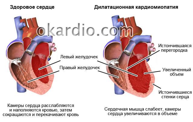 Обзор дилатационной кардиомиопатии: суть болезни причины и лечение