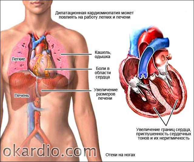 Дилатационная кардиомиопатия: что это такое, причины, симптомы и ...