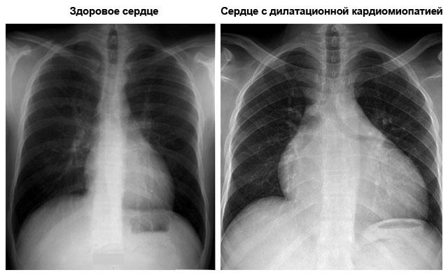 рентгеновский снимок пациента со здоровым сердцем и пациента с дилатационной кардиомиопатией