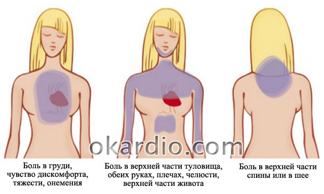 области боли при микроинфаркте