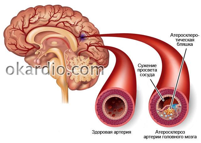 Анализ крови холестерин повышен что это значит