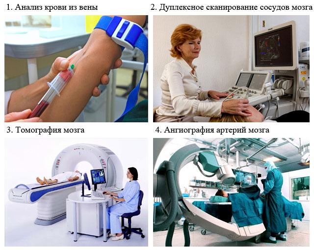 методы диагностики атеросклероза сосудов головного мозга