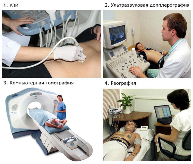 методы диагностики варикоцеле