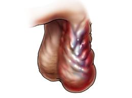 Полный обзор болезни варикоцеле у мужчин: причины, диагностика, лечение