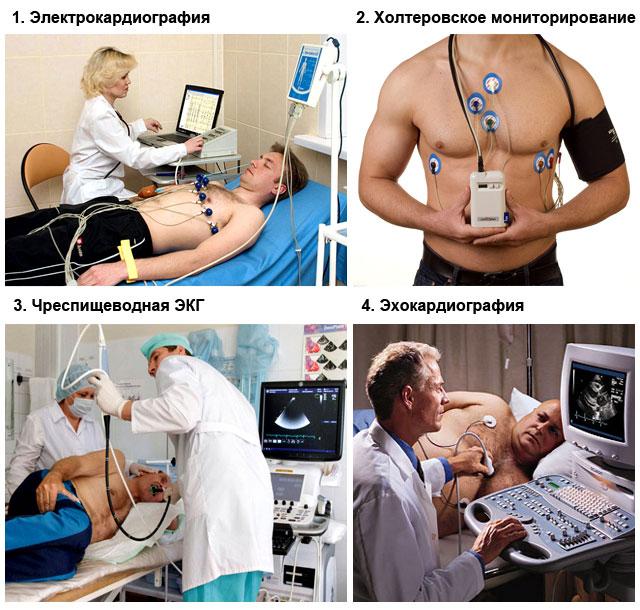 методы диагностики синусовой брадиаритмии