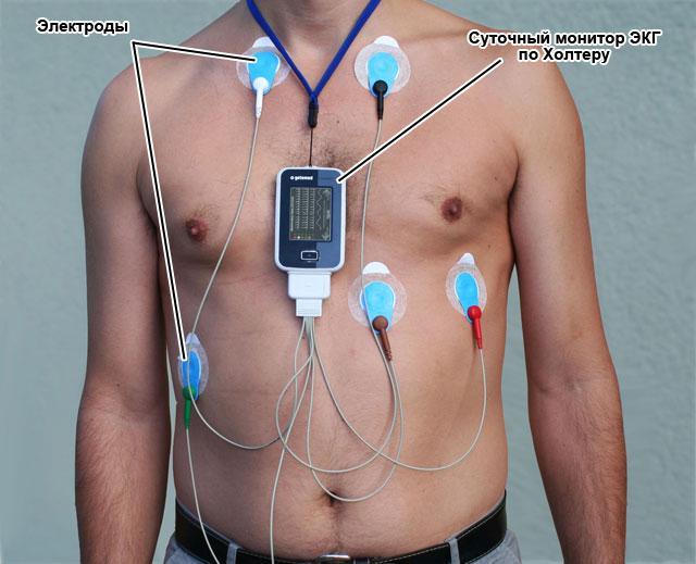суточное мониторирование сердечной деятельности по Холтеру