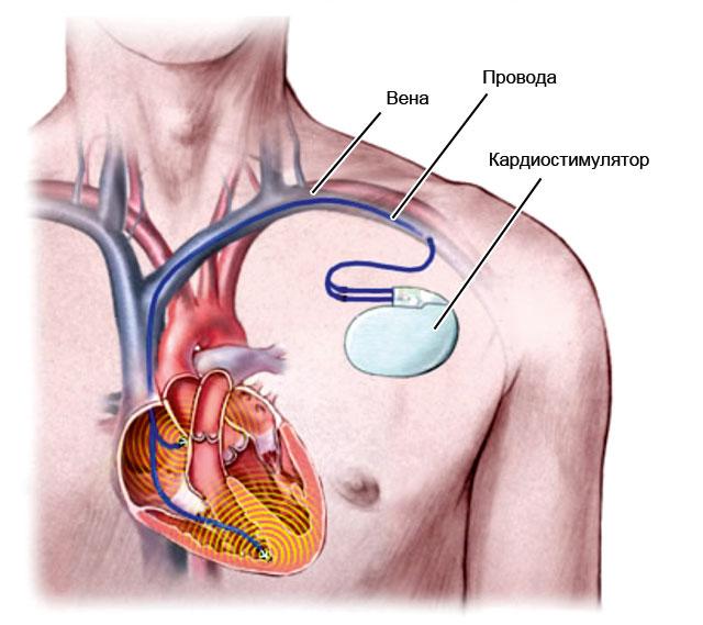 кардиостимулятор