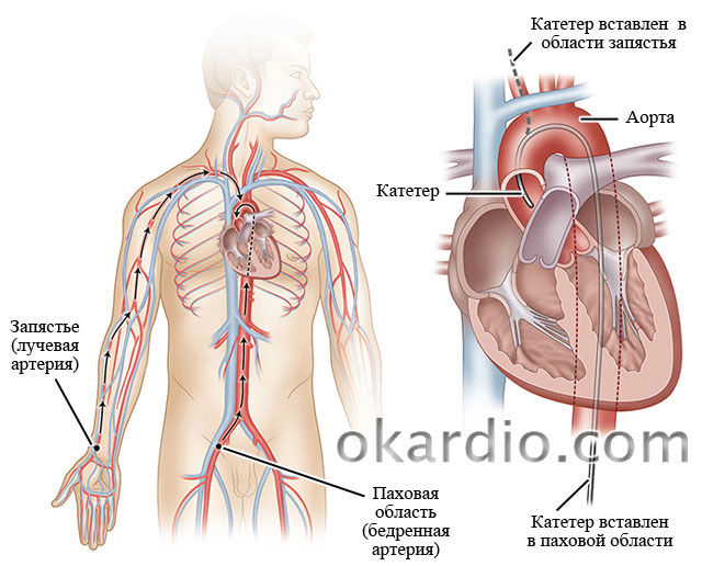 способы введения катетера для проведения коронарографии сосудов сердца