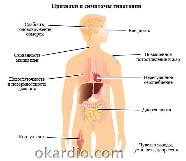симптомы при гипотонии