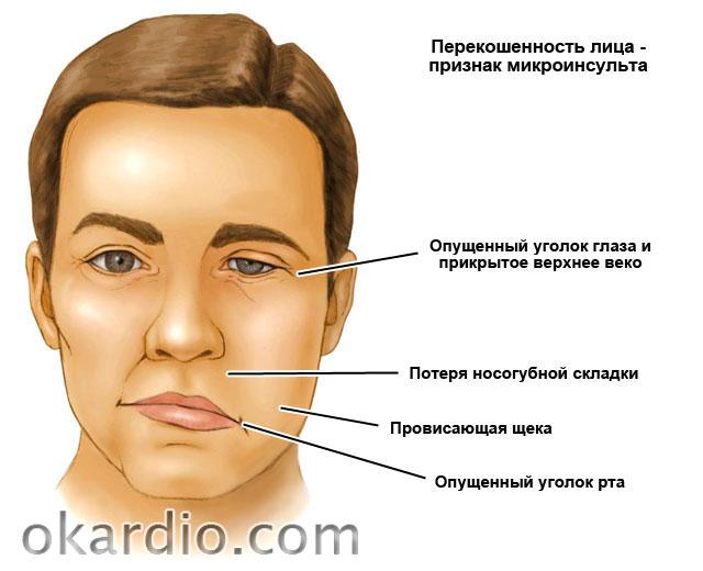 перекошенность лица при микроинсульте