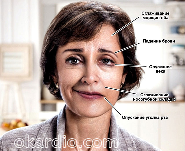 асимметрия лица – один из симптомов микроинсульта