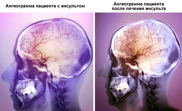 ангиограмма пациента с инсультом (до и после лечения)