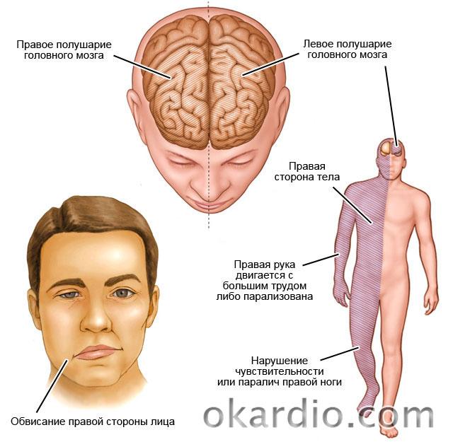 Сколько живут после ишемического инсульта левой стороны последствия осложнения