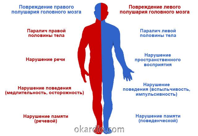 особенности нарушения кровообращения в полушариях головного мозга