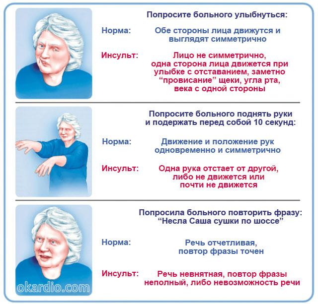 тест для диагностики инсульта