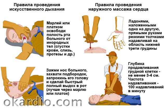 правила проведения искусственного дыхания и массажа сердца