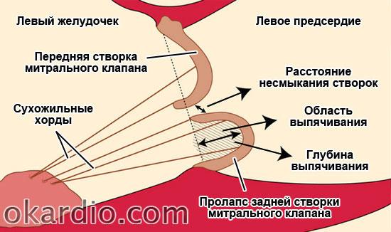 параметры степени пролапса задней створки митрального клапана