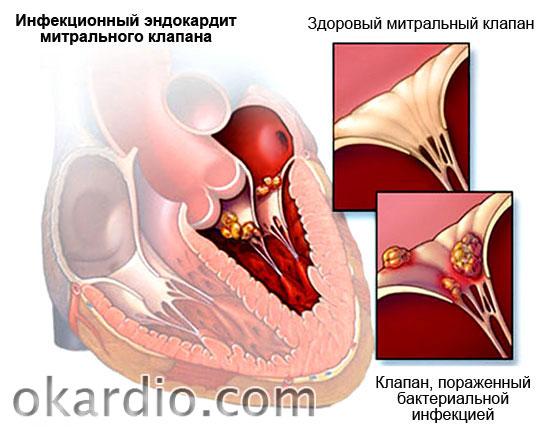 инфекционный эндокардит митрального клапана