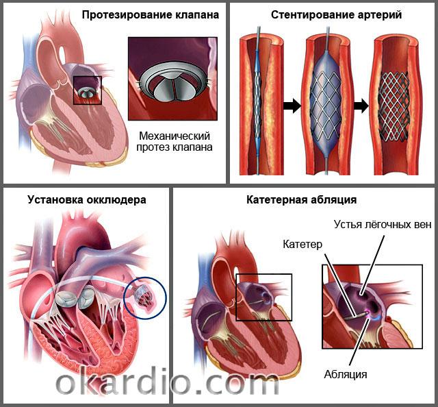 хирургическое лечение сердечной недостаточности