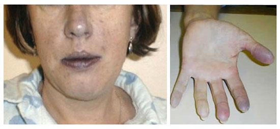 при сердечной недостаточности проявляется синюшность губ, носа и пальцев
