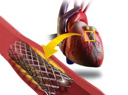 Полная характеристика сердечной недостаточности