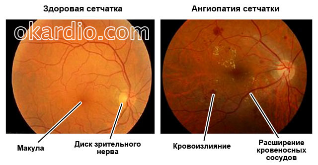 Гипертоническая ангиопатия сетчатки глаза