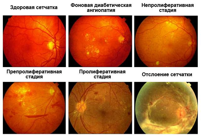 стадии диабетической ангиопатии сетчатки