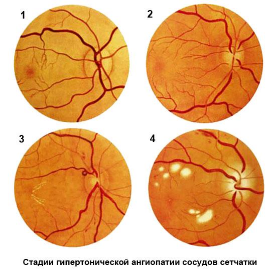 стадии гипертонической ангиопатии сосудов сетчатки