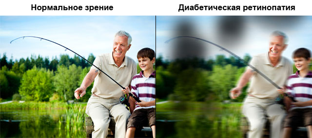 зрение при диабетической ретинопатии