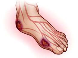 Полный обзор ангиопатии сосудов: причины, виды, лечение и прогноз