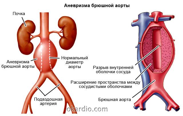 аневризма брюшной аорты в области почек