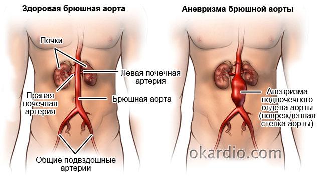 аневризма подпочечного отдела аорты