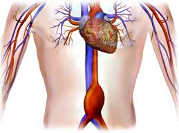 Аневризма брюшной аорты – большой обзор болезни