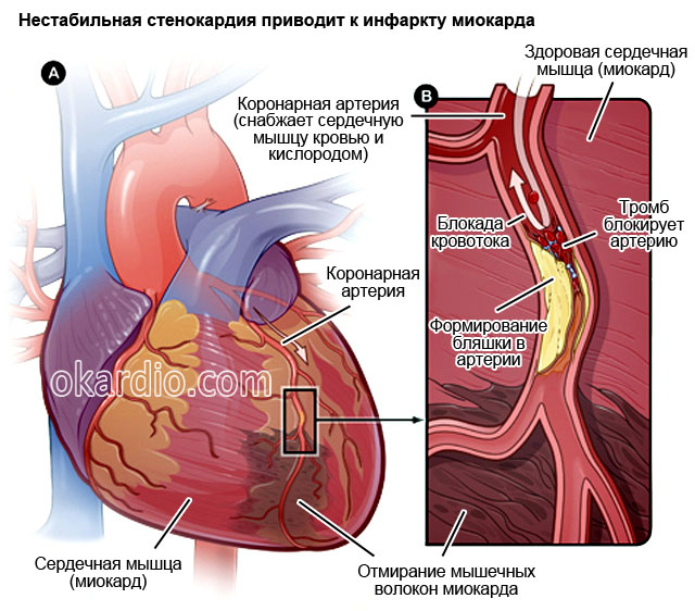 нестабильная стенокардия приводит к инфаркту миокарда