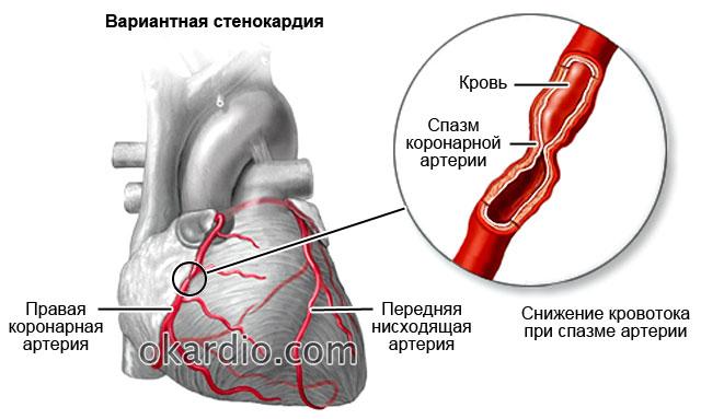 вариантная стенокардия