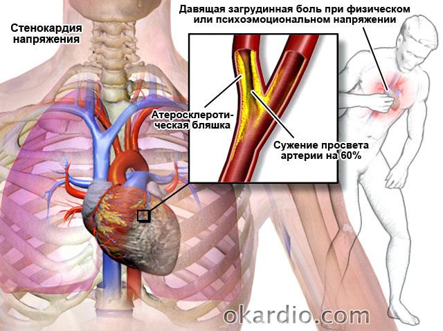 стенокардия напряжения