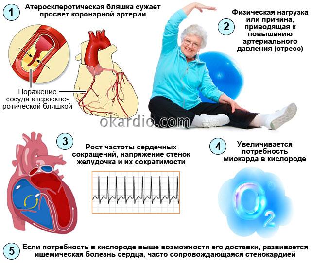 стенокардия напряжения как проявление ишемической болезни сердца
