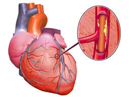 Обзор стенокардии напряжения 2 ФК: симптомы, лечение, прогноз при болезни