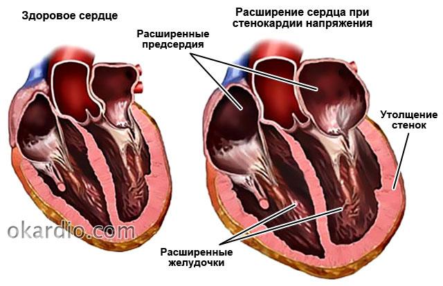 расширение сердца при стенокардии напряжения