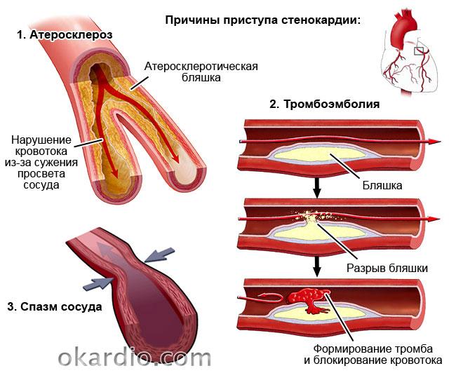причины приступа стенокардии