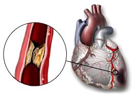 Признаки приступа стенокардии, как оказать помощь и предотвратить повторы приступов