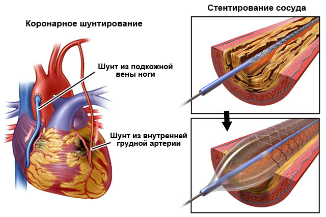 лечение причин желудочковой экстрасистолии