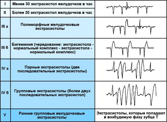 классификация желудочковой экстрасистолии