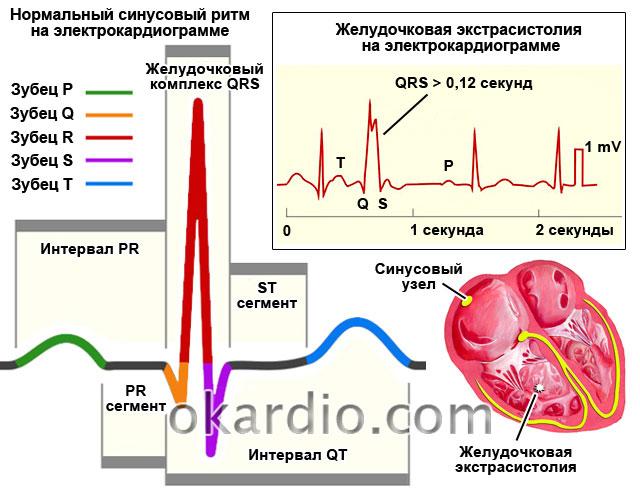 желудочковая экстрасистолия на электрокардиограмме